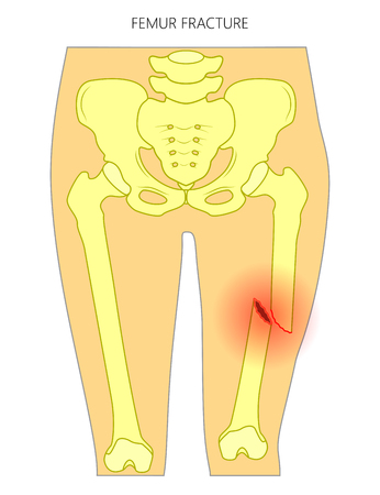 Vector illustration of a human pelvis and hip with femur shaft fracture (broken thighbone). Front view. For advertising and medical publications. EPS 10. Illustration