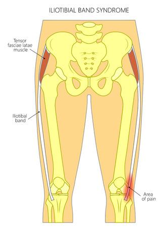 Ilustración vectorial de una pelvis humana, la cadera y una articulación de la rodilla con síndrome de la banda iliotibial (tracto). Vista frontal. Para publicidad y publicaciones médicas. EPS 10.