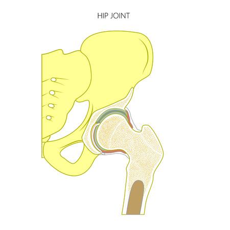 Ilustración De Una Articulación De Cadera Humana Sana Y Caderas ...