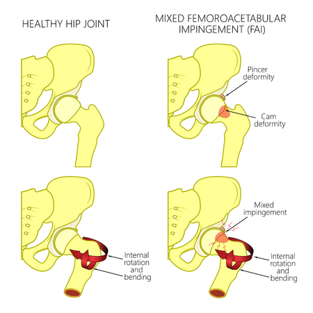 Vector illustration of a healthy human hip joint and a hip with mixed femoroacetabular impingement. Front view of hip joint with section of the pelvis. For advertising and medical publications.