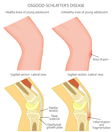 Vector illustration of a healthy adolescent knee and unhealthy knee with Osgood schlatter disease. Anatomy of human knee, external view and lateral view of sagittal section of the knee.