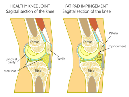 Vector illustration of a healthy human knee joint and unhealthy knee with Hoffa's fat pad impingement syndrome. Knee anatomy, sagittal section. For advertising and medical publications. EPS 10. Stock Illustratie