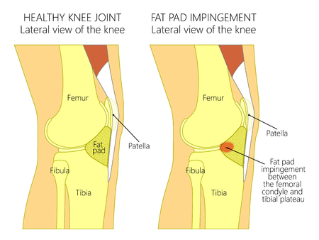 Vector illustration of a healthy human knee joint and unhealthy knee with Hoffa's fat pad impingement syndrome. Knee anatomy, lateral view. For advertising and medical publications. EPS 10. Illustration