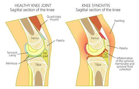 Vector el ejemplo de una junta de rodilla humana sana y de una rodilla malsana con sinovitis. Anatomía de la rodilla humana, corte sagital de la rodilla. Para publicidad y publicaciones médicas. EPS 10. Ilustración de vector
