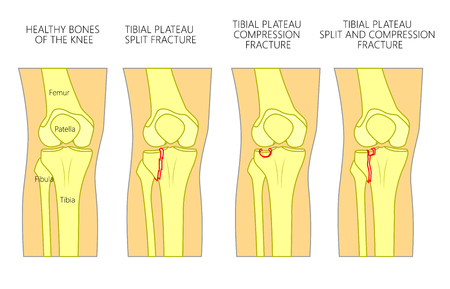 Vector illustration of a healthy bones of human knee and a knee with tibial plateau split, compression or depression fractures. Front view of the knee. For advertising, medical publications. EPS 10.