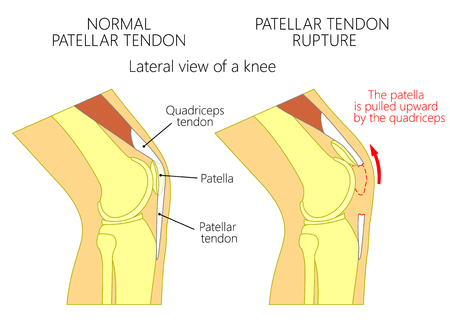 Vector illustration of a healthy knee joint and an unhealthy knee with a  patellar tendon rupture problem. Anatomy of the human knee, side view of the bent knee. EPS 10.