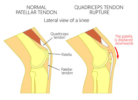 Vector illustration of a healthy knee joint and an unhealthy knee with a quadriceps tendon rupture problem. Anatomy of the human knee, side view of the bent knee.