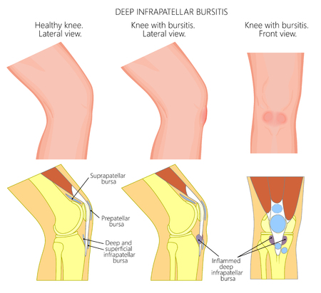 Vector illustration of a healthy knee and unhealthy knee with deep infrapatellar bursitis or clergyman's knee. Anatomy of human knee joint, lateral or side view, anterior or front view.