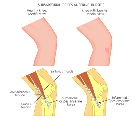 Vector illustration of a healthy knee and unhealthy knee with Subsartorial or pes anserine bursitis or breaststroke swimmer knee. Anatomy of human knee joint, external view and medial or side view. Stock Illustratie