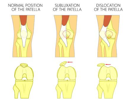 健康な人間の膝関節と不健康な膝の問題のベクトル イラスト。亜脱臼や脱臼膝蓋または膝頭の。まっすぐで曲がった膝の人間の膝継手、フロント ビ