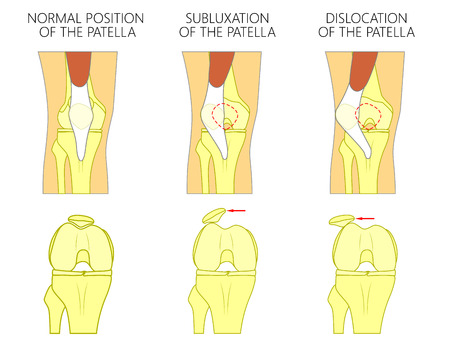 Vector illustration of a healthy human knee joint and unhealthy knees with problem. Subluxation and dislocation of the patella or kneecap. Anatomy of human knee joint, front view of straight and bent knee. Vettoriali