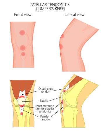 Ilustración vectorial de la articulación de la rodilla poco saludable con tendinitis rotuliana o rodilla de puente. Vista frontal y lateral o lateral de la pierna. Para publicidad y otras publicaciones médicas. EPS 10. Ilustración de vector