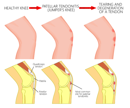 Vector illustration of healthy knee joint and unhealthy knees with patellar tendonitis and progress of disease. Lateral or side view of the leg. For advertising and other medical publications. EPS 10.