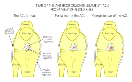 Vector illustration of a healthy knee joint with intact, partial tear of anterior cruciate ligament and complete tear of ACL. Anterior or front view of flexed knee. For medical publications. EPS 10.