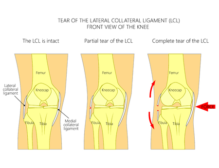 Vector illustration anatomy of a knee joint with healthy ligaments and sprain, tear, rupture of lateral collateral ligament. Front view of straight knee. For advertising, medical publications. EPS 10.