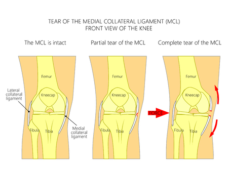Vector illustration anatomy of a knee joint with healthy ligaments and sprain, tear or rupture of medial collateral ligament. Front view of straight knee. For advertising, medical publications. EPS 10