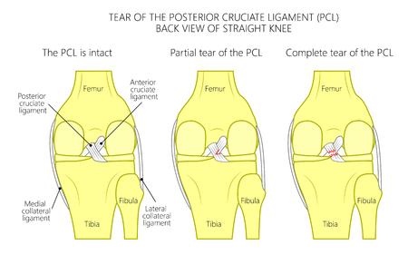 Vectorillustratie van gezond kniegewricht met intacte ligamenten, gedeeltelijke scheur van achterste kruisband, volledige scheur van PCL. Achteraanzicht van rechte knie. Voor medische publicaties. EPS 10. Stock Illustratie