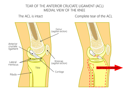 Vector illustration anatomy of a knee joint with healthy and torn anterior cruciate ligament. Side or medial view of straight knee with sagittal section of femur bone. For medical publications. EPS 10