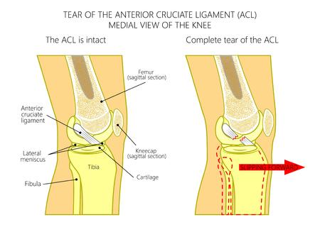 Ilustracja wektorowa anatomii stawu kolanowego ze zdrowym i zerwanym więzadłem krzyżowym przednim. Widok z boku lub przyśrodkowo na proste kolano ze strzałkowym przekrojem kości udowej. Do publikacji medycznych. EPS 10