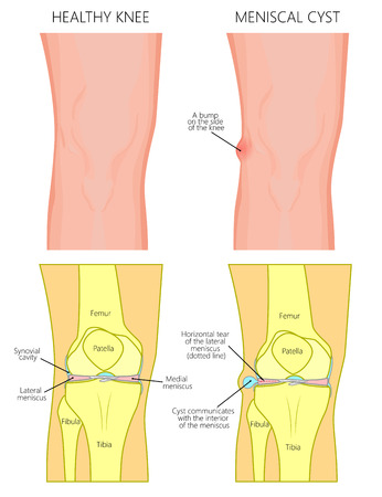 Vector illustration of a healthy human knee joint and unhealthy knee with horizontal tear of meniscus and meniscal cyst. Front, anterior view of knee. For advertising and medical publications. EPS 10. Illustration