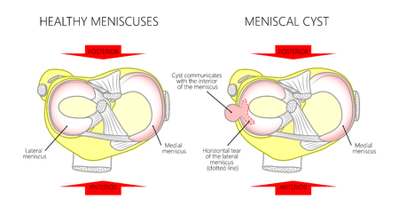 Vector illustration of a proximal surface of tibia in a healthy human knee joint and unhealthy knee with horizontal tear of meniscus and meniscal cyst. For advertising and medical publications. EPS 10.