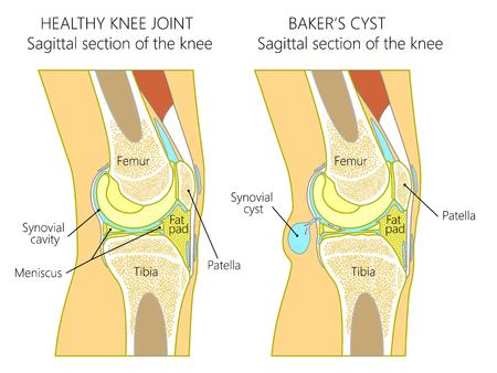 Ilustracja wektorowa zdrowego ludzkiego stawu kolanowego i niezdrowego kolana z torbielą Bakera. Anatomia ludzkiego kolana, strzałkowa część kolana. do publikacji reklamowych i medycznych. EPS 10.