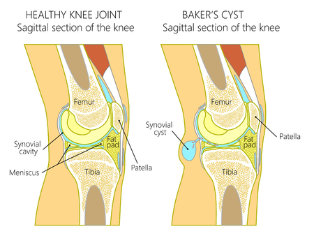 Vector illustration of a healthy human knee joint and unhealthy knee with Bakers cyst. Anatomy of human knee, sagittal section of the knee. for advertising and medical publications. EPS 10.