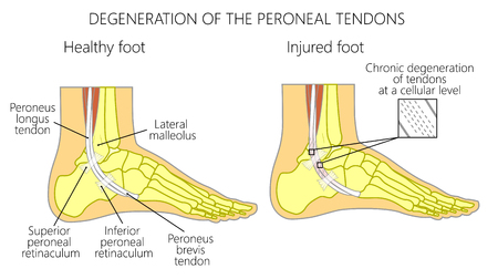 Vector illustration of Peroneal Tendon Injuries. Degeneration of the peroneus longus and brevis tendons. Tendinosis or tendinopathy. Lateral ankle injury.