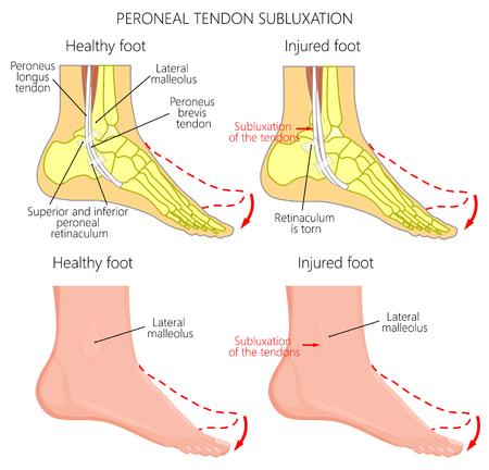 Ilustración De Vector De Lesiones Del Tendón Peroneo. Ruptura Del ...