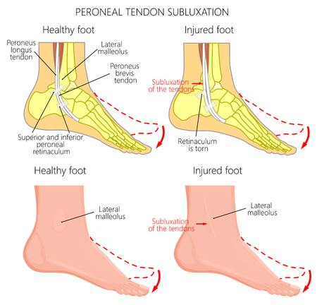 Vector illustration of Peroneal Tendon Injuries. Peroneal tendon dislocation or subluxation when the superior peroneal retinaculum or retinacula is torn. Lateral ankle injury. Illustration