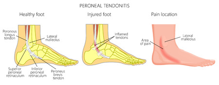 Vector illustration of Peroneal Tendon Injuries. Peroneal tendonitis. Inflammation of peroneal tendons. Lateral ankle injury. Illustration