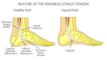 Vector illustration of Peroneal Tendon Injuries. Rupture of the peroneus longus tendon. Lateral ankle injury. Illustration