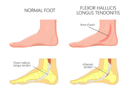 Illustration of healthy human foot and a medial ankle injury. Flexor hallucis longus tendonitis.