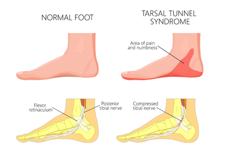 Illustration of healthy human foot and medial ankle injury. Tarsal tunnel syndrome.