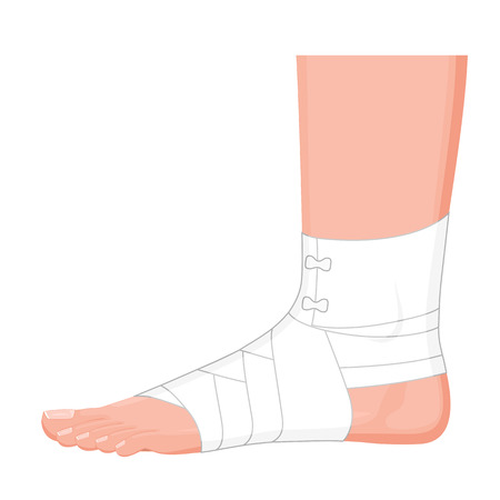 Illustration of the correct way to wrap sprained ankle for medical guideline Ilustração