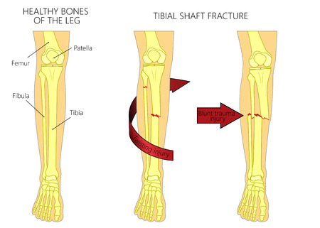 Vector illustration of a healthy bones of human leg and a leg with tibial shaft fracture. Twisting, blunt trauma injury. Front view of the foot with knee. For advertising, medical publications.