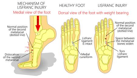 Illustration vectorielle d'un pied humain en bonne santé et d'un pied souffrant de lésions de lisfranc avec mise en charge et mécanisme de blessure. Vecteurs