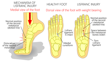 Vector illustration of a healthy human foot and a foot with lisfranc injury with weight bearing and mechanism of injury.