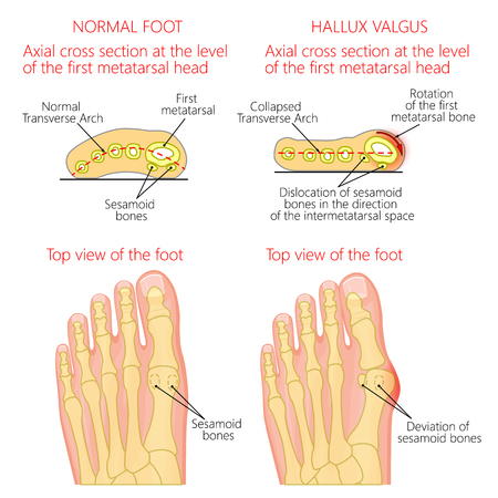 Vector illustration of a healthy human forefoot and a foot with hallux valgus, dislocation of sesamoid bones. Top view and cross section of of the foot. For advertising, medical publications.