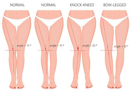 Vector illustratie Vormen van de benen. Normale en gebogen benen. Klop knieën. Gebogen benen. Genu valgum en genu varum. Voor reclame, medische (gezondheidszorg), publicatie.