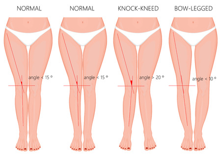 Vector Illustration. Shapes of the  legs. Normal and curved legs. Knock knees. Bowed legs. Genu valgum and genu varum.  For advertising, medical (health care),  publication. 矢量图像