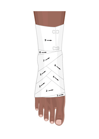 Correct way to wrap an ankle by flexible elastic supportive orthopedic bandage. Illustration