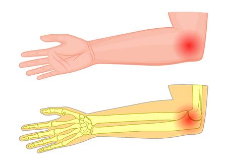 Illustration vectorielle d'un joint de coude humain avec une douleur ou une blessure. Vue médiale Pour la publicité, les publications médicales. Vecteurs