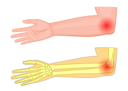 Vector illustration of a human elbow joint with a pain or injury. Medial view. For advertising, medical publications.