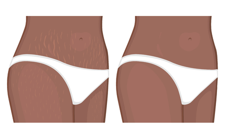 Vector illustration Human body problem Healing of stretch marks on African American Indian women belly, legs.