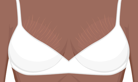 Vector illustration human body problem Stretch marks on African American Indian woman, female For advertising, medical publications, use on package of medicinal products, creams, lotion.