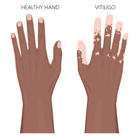Vector illustration of a healthy human Afro American hand and a hand with vitiligo. Loss of skin color, depigmentation. Dorsal view. For advertising, medical publications. Stock Vector - 91098447