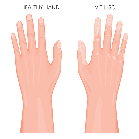 Vector illustration of a healthy hand and a hand with vitiligo, loss of skin color. Dorsal view. For advertising, medical publications. EPS 8.