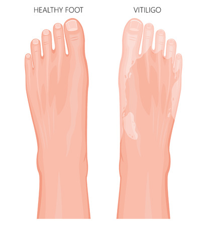 Vector illustration of a healthy foot and a foot with vitiligo, loss of skin color. Dorsal view.  For advertising, medical publications. EPS 8. Ilustração