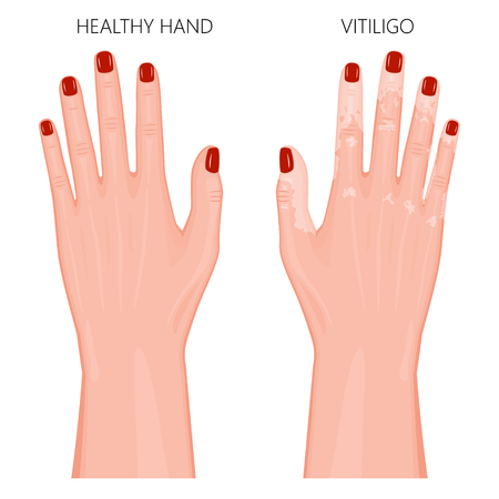 A Vector illustration of a healthy hand with red nails and a hand with vitiligo, loss of skin color. Dorsal view. For advertising, medical publications. EPS 8. Stock Vector - 91126383